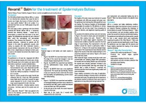 Junctional Epidermolysis Bullosa